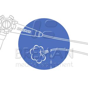 Ремонт засорившегося канала подачи воды/воздуха в гибком эндоскопе