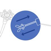 Восстановление проходимости инструментального канала гибкого эндоскопа
