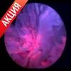 Цистоскоп для фотодинамической диагностики PDD, производства Karl Storz (Германия). Акционная цена.