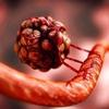 Жизнь под микроскопом. Опухоль.